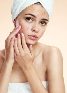 Laser Treatment for Acne Scars Singapore